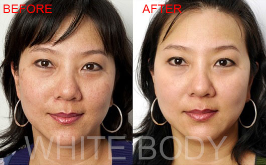 skin whitening supplements