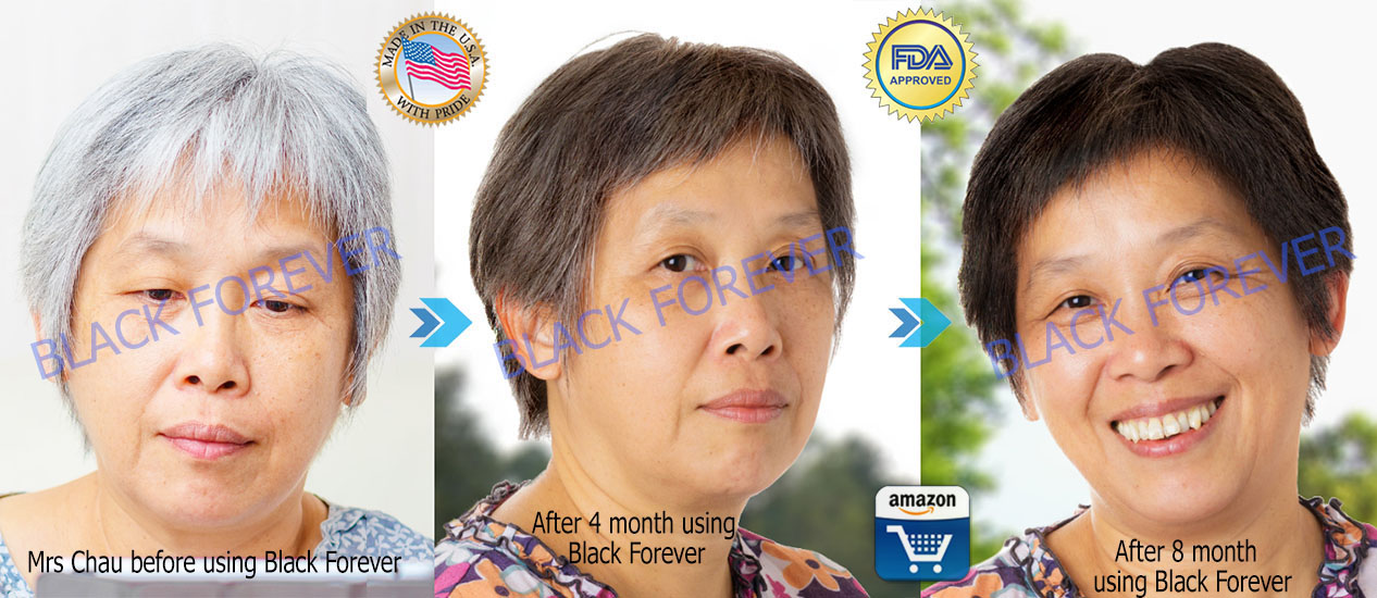 Black Forever Gray Hair and Hair Loss Treatment USA Product